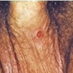 This image shows primary syphilis. The ulcer in this case is on the underside of the penis. The ulcer can occur anywhere- but is most often on the penis, scrotum, anus or mouth.